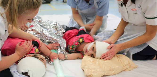 Conjoined twins discharged from hospital