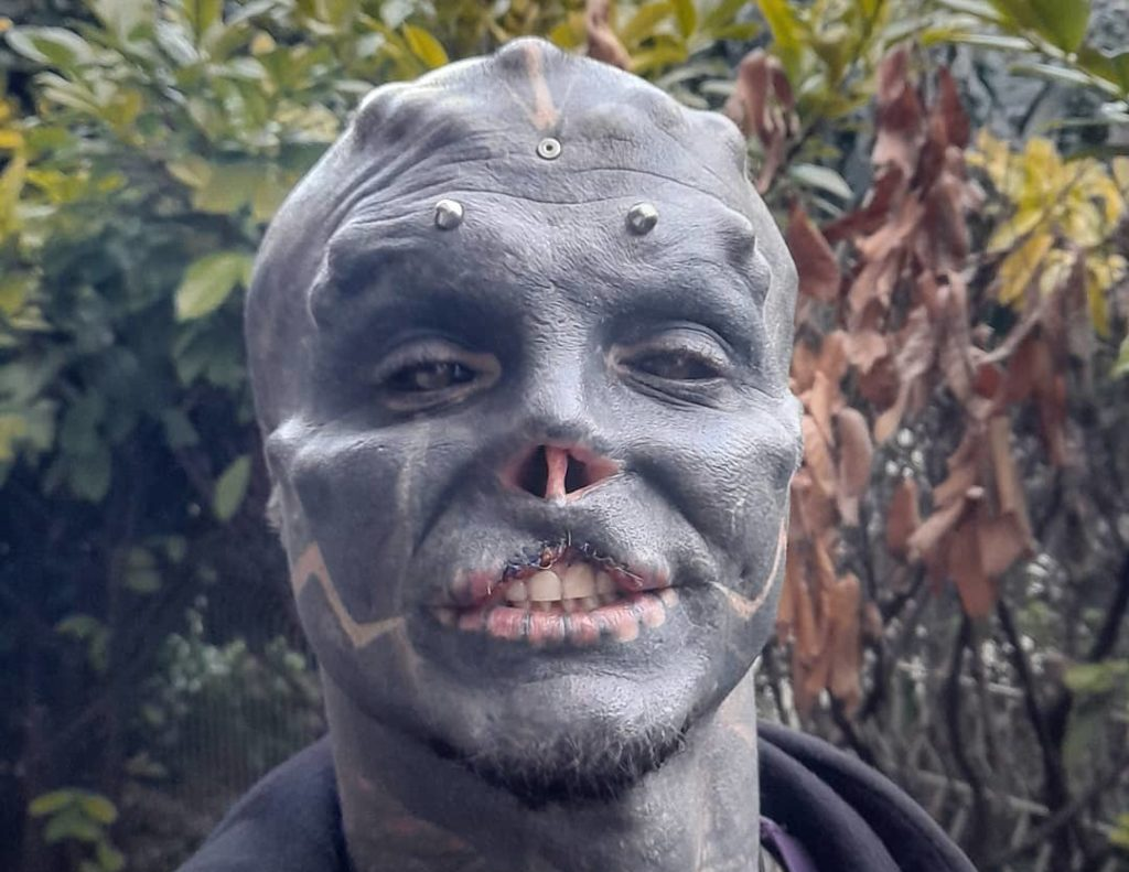 Man cuts off nose and upper lip to become 'black alien'