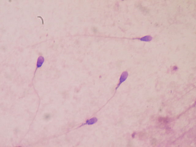 New study suggests COVID-19 reduces male fertility, experts are unconvinced