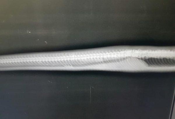 Noodle's spine